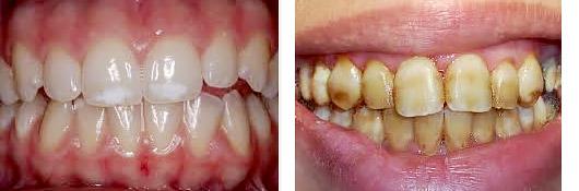 Zahnaufhellung - Zahn-Bleaching   Expat Aktuell