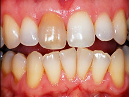 Zahnverfärbung nach Wurzelbehandlung
